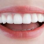 teeth 150x150 - Отбеливание зубов в домашних условиях