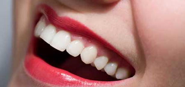 92 - Отбеливание зубов