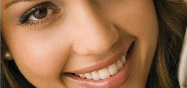1 - Голливудская улыбка