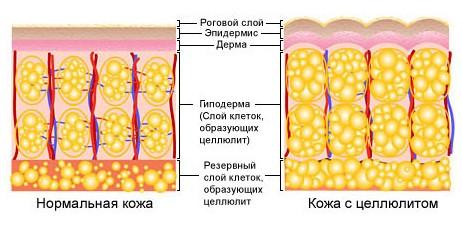 cellulit2 - Стадии целлюлита