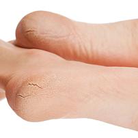 Трещины на пятках, как лечить, причины появления трещин