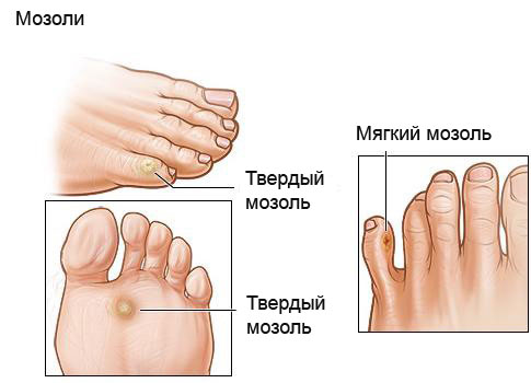 Tverdimazol - Мозоли на ногах: лечение