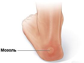mozoli - Мозоли на ногах: лечение