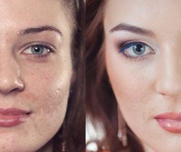 Неровности и недостатки кожи – как их скрыть?